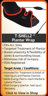 An effective treatment alternative to plantar fasciitis surgery