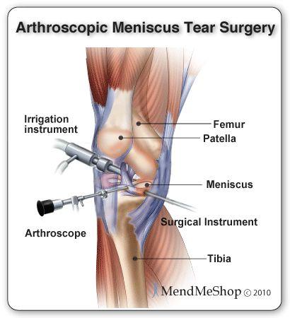 arthroscopic meniscal tear surgery
