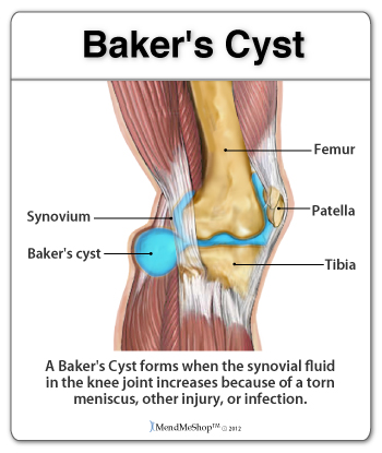 Baker's cysts can form on the back of the knee.