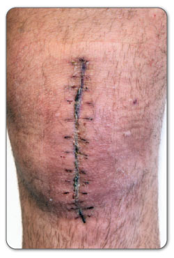 open meniscal knee tear surgery