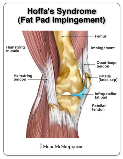 knee tendonitis pain regions