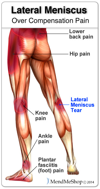 Overcompensation pain can result in a severe setback when recovering from a torn medial meniscus.