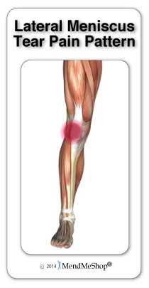 Posterior Horn meniscus pain is felt on the inner side of the knee