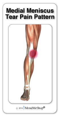 Medial meniscus pain is felt on the inner side of the knee
