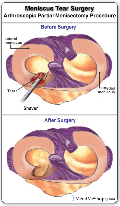 meniscus repair surgery recovery