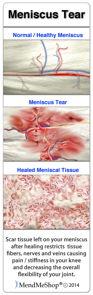 Posterior Horn of the Lateral meniscus tears will heal with massive amounts of scar tissue.