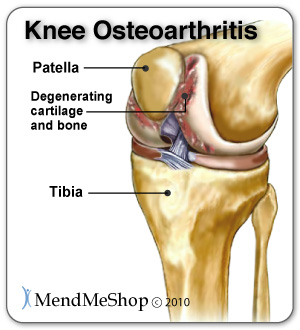 Osteoarthritis can result when a meniscus tear goes left untreated.